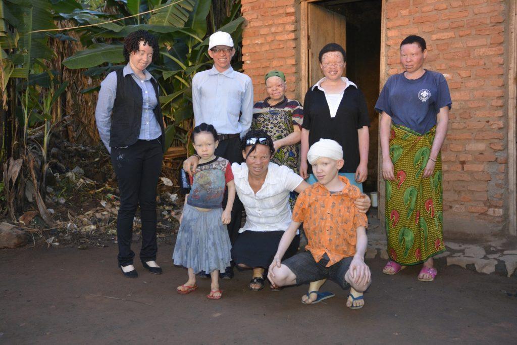 Albino gemeenschap Oeganda - Wijnand Noordhoek Foundation